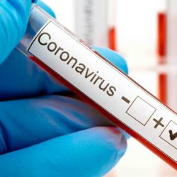 Crean prueba para detectar covid-19 en 40 minutos